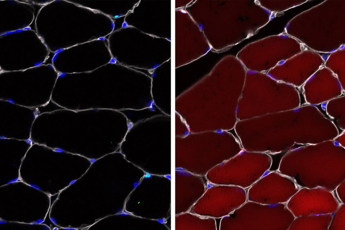"""Left: the """"reporter"""" cells before the gene-editing machinery isinjected. Right: after the injection, the cells fluoresce red to indicate that the treatment worked"""