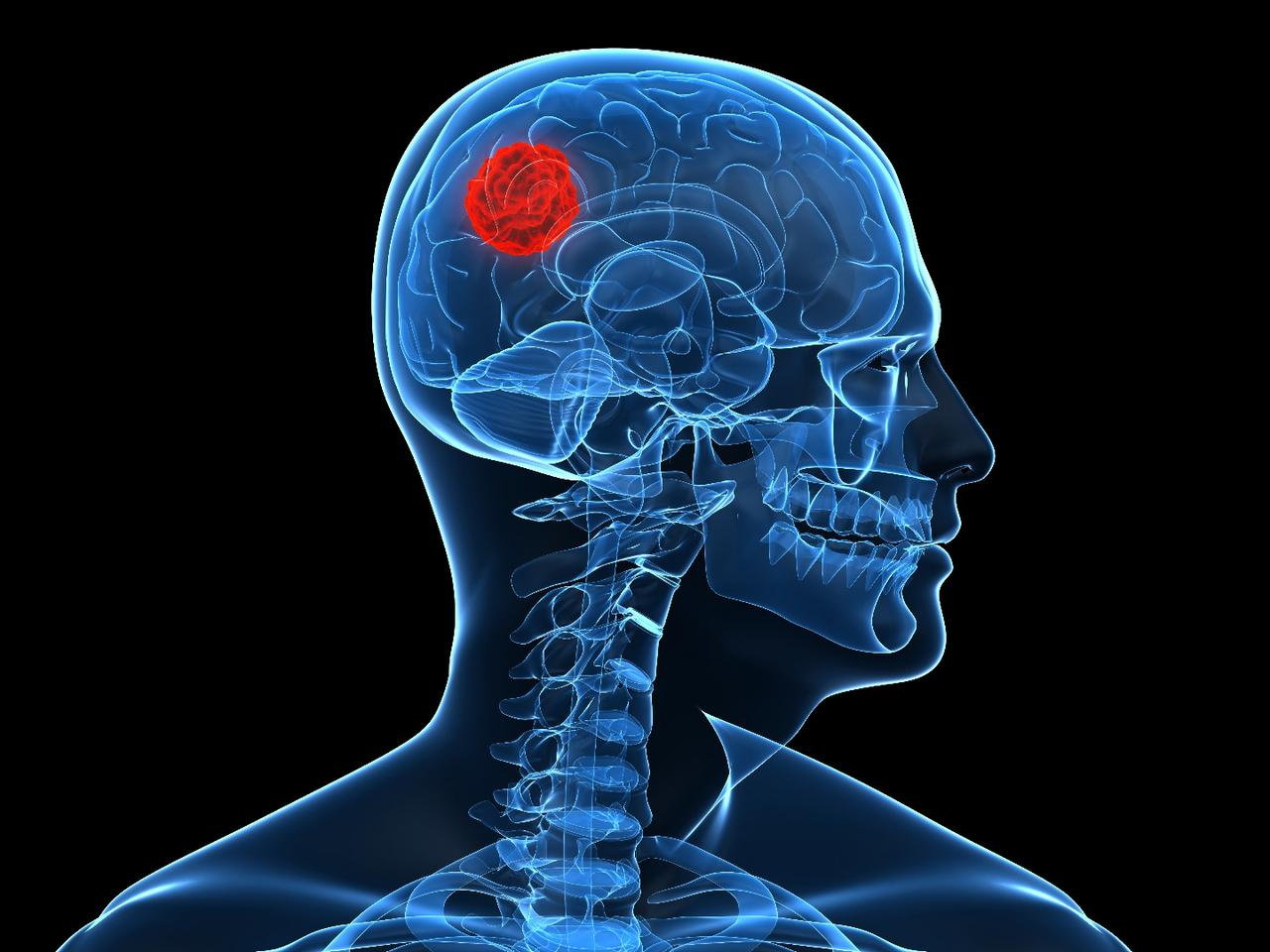 A molecule known as UCD38B could find use in the treatment of brain cancer (Image: Shutterstock)