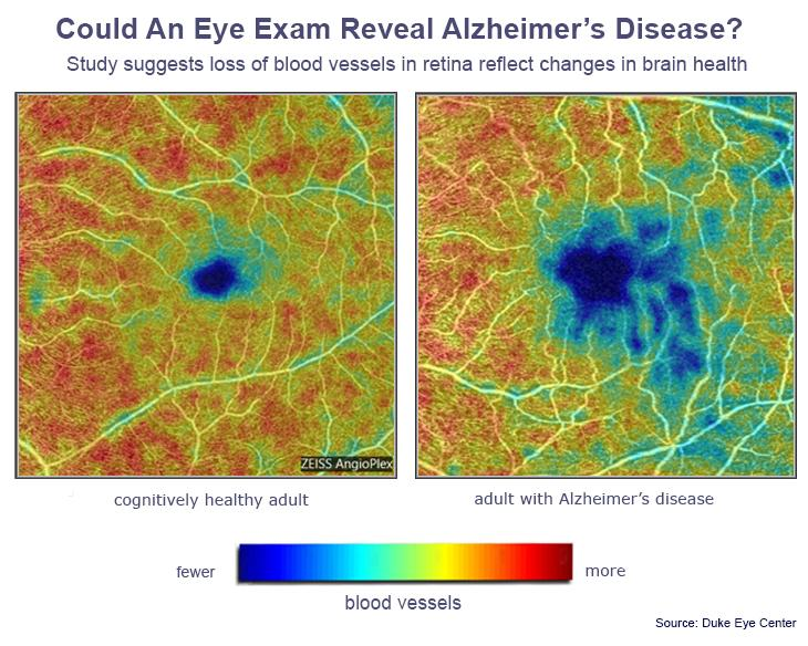 The differences in blood vessel density between Alzheimer's subjects and cognitively healthy subjects identified in the new scan