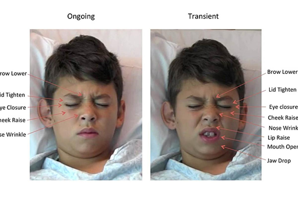 Examples of a child's facial expressions of pain from the study, illustrating many of the core facial actions observed in pain