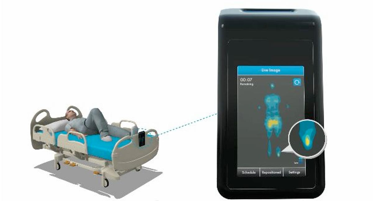 The MAP System provides a real-time display of the pressure points on a patient's body