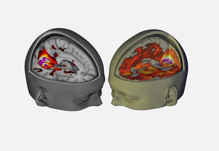 The brain image on the right shows the increase of brain areas contributing to visual processing under LSD, compared with the brain on the left under normal circumstances