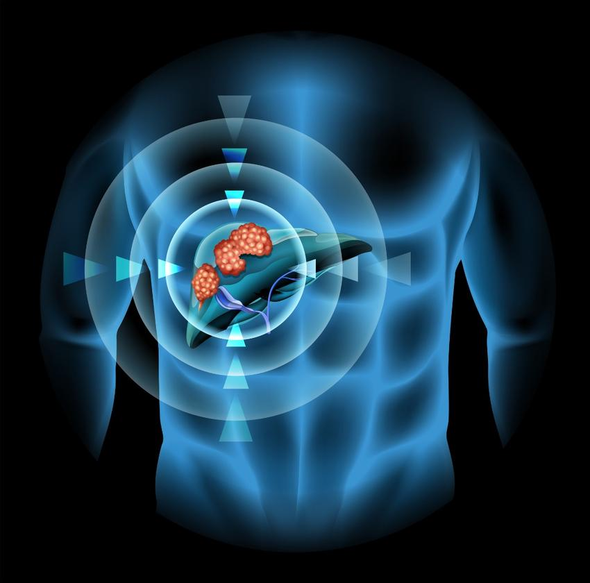 Heat-sensitive capsules were warmed up using ultrasound toreleasetheir chemotherapydrug payloadin the liver