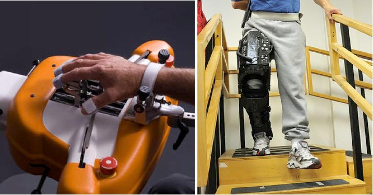 The Amadeo Robotic Hand and Tibion Robotic Leg are helping to rehabilitate stroke victims