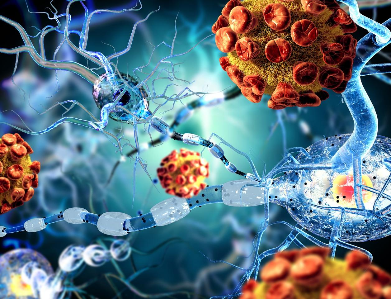 An immune cell originating in the intestine has been found to reduce brain inflammation associated with multiple sclerosis