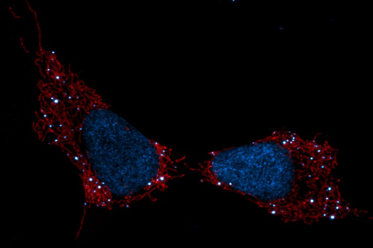 Mitochondria seen in red, cell nuclei (blue) and mtDNA (white dots)