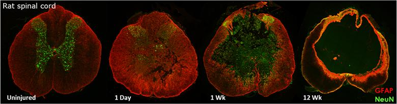 Composite image showing neural activity in rat spinal cord following gene therapy