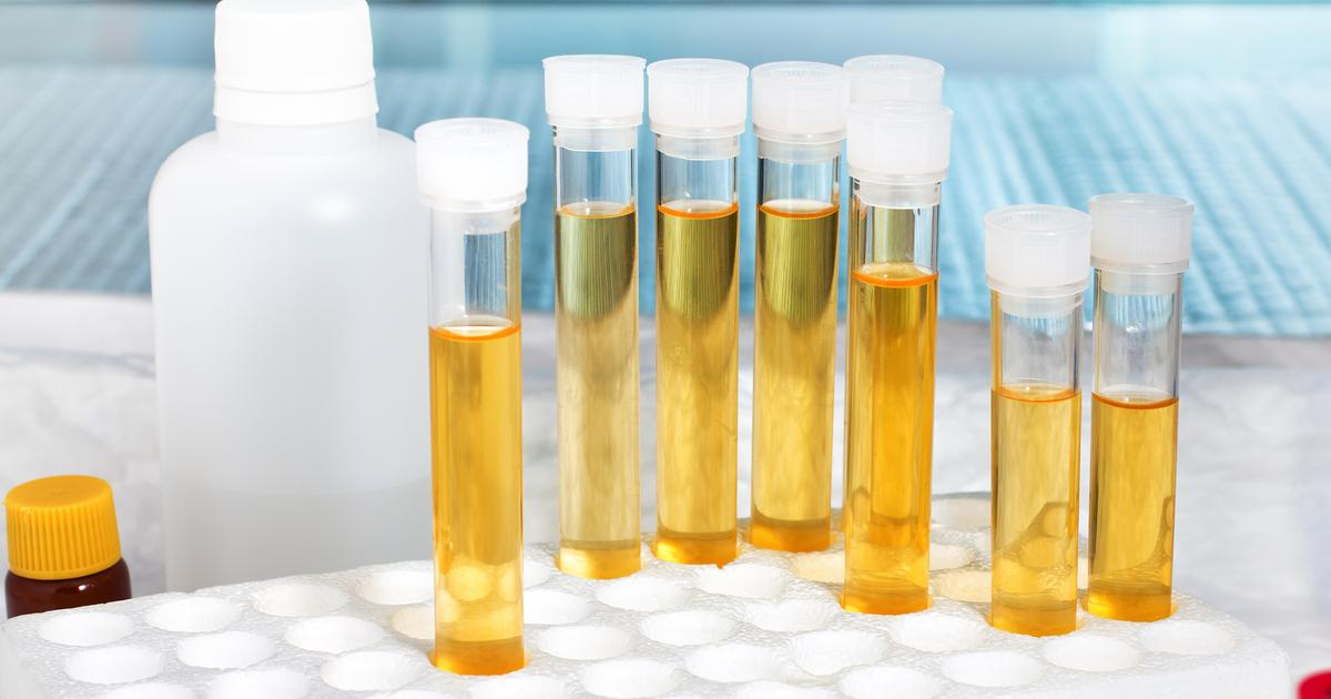 Urine test detects bladder cancer up to 10 years before clinical signs