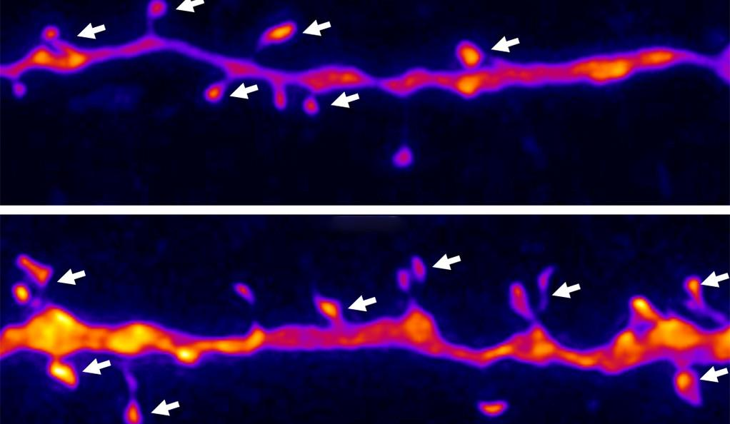 The image above shows spine-synapse density in the medial prefrontal cortex before (top) and after NV-5138 treatment (bottom).