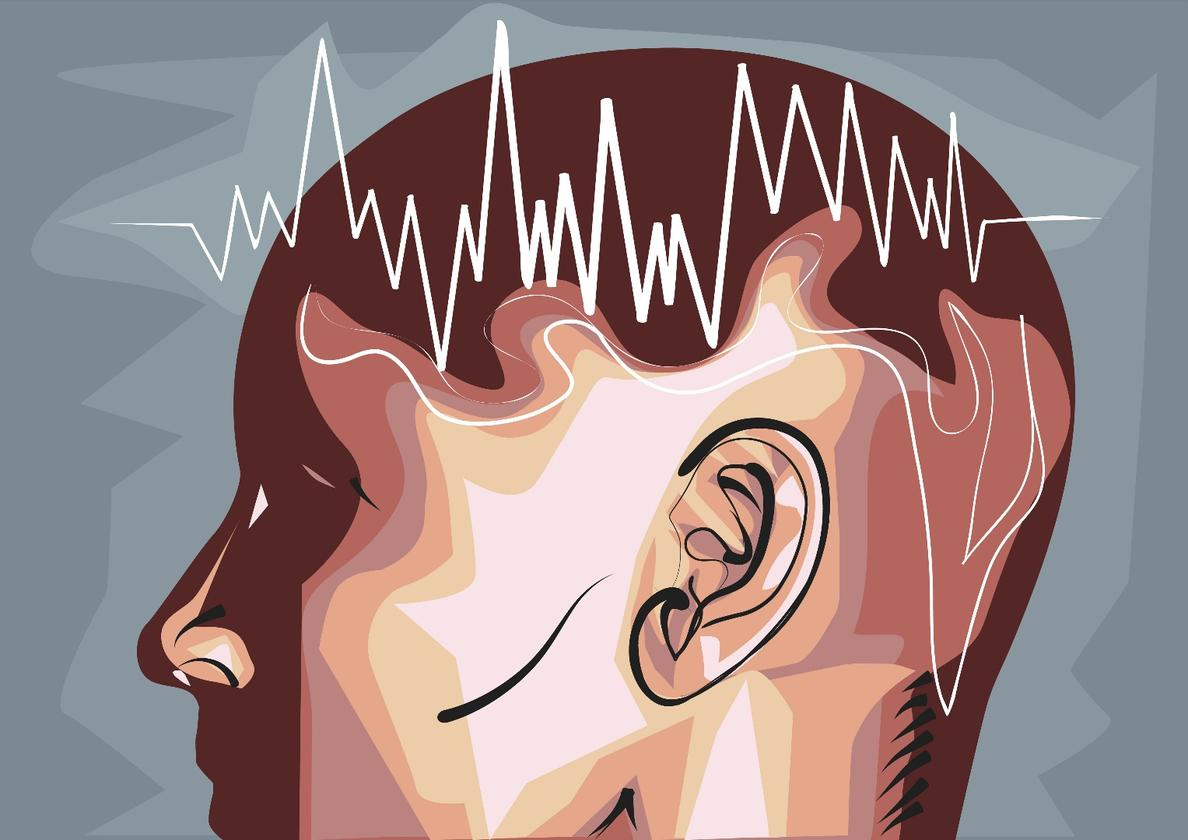 Electrical pulses delivered to the brains of drug users have dampened the neural response to common triggers in early trials