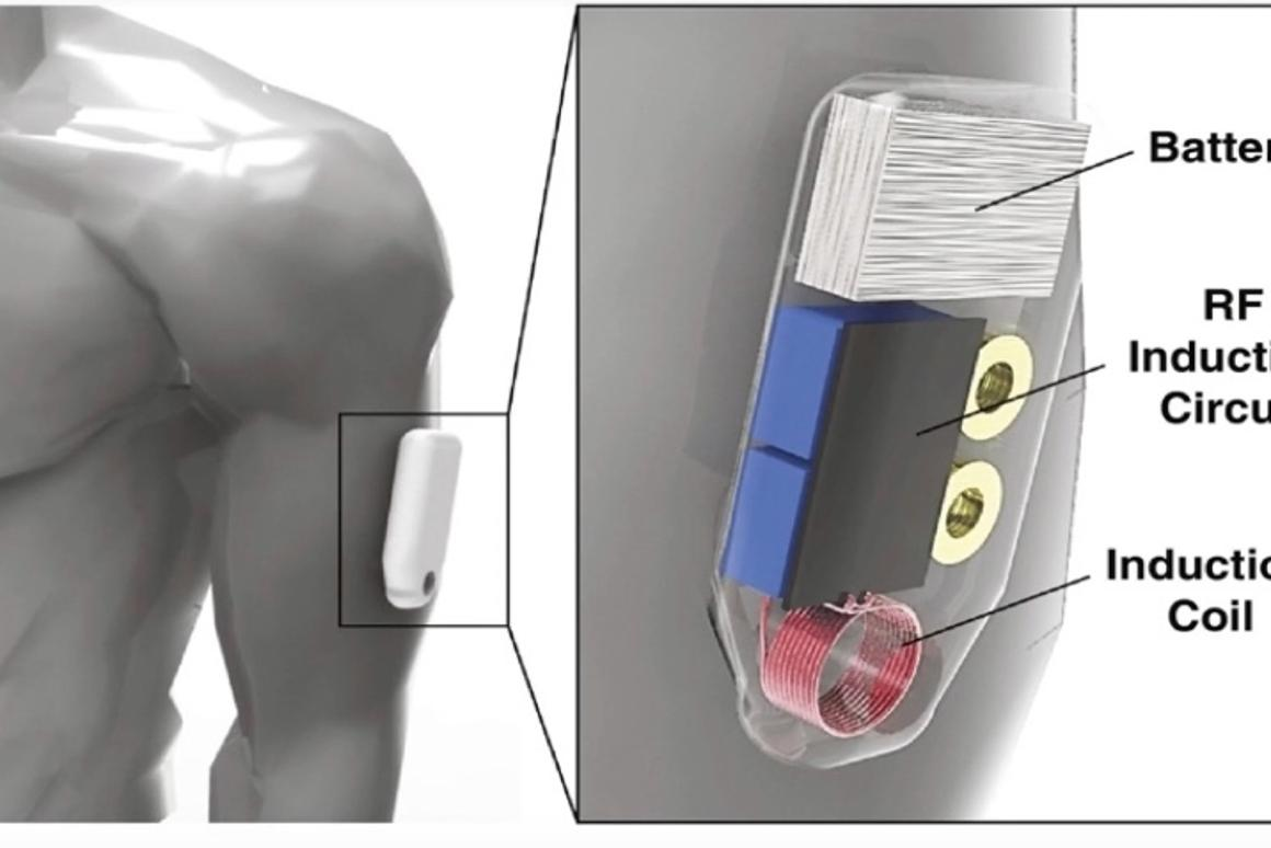 A diagram of the system's armband – the separatedrug-release capsule has been successfully tested in mice