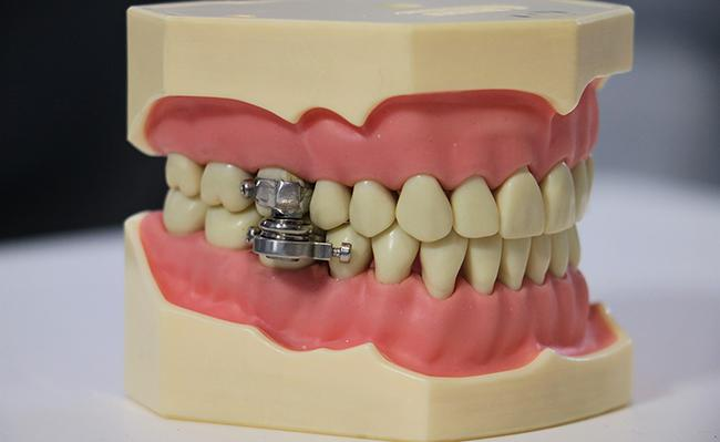 Silicone-based cheek protectors stop the DentalSlim device from cutting patients' mouths