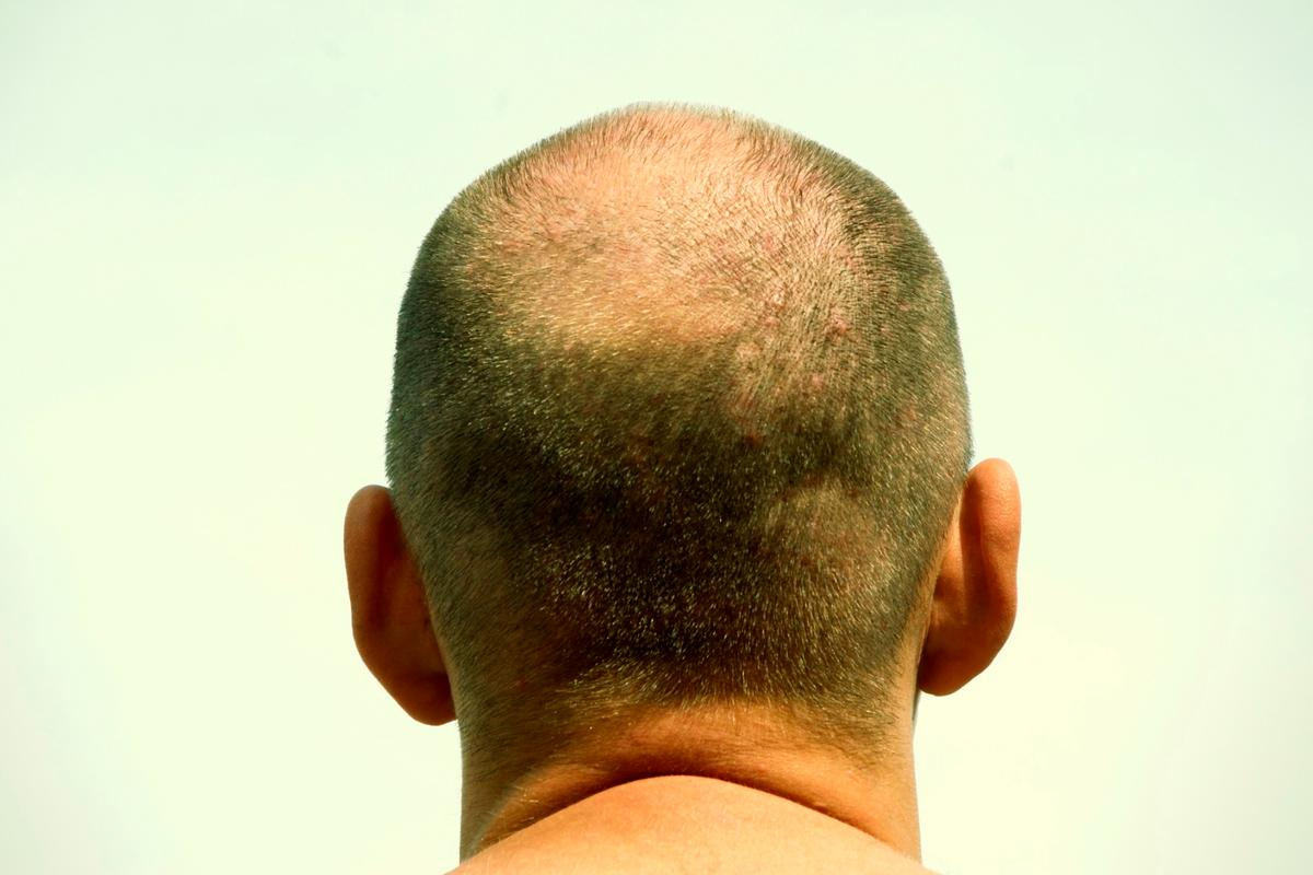 Scientists from Yokohama National University have reproduced 5,000 hair follicle germs (HFGs) in the lab, simultaneously, giving hope to bald people everywhere