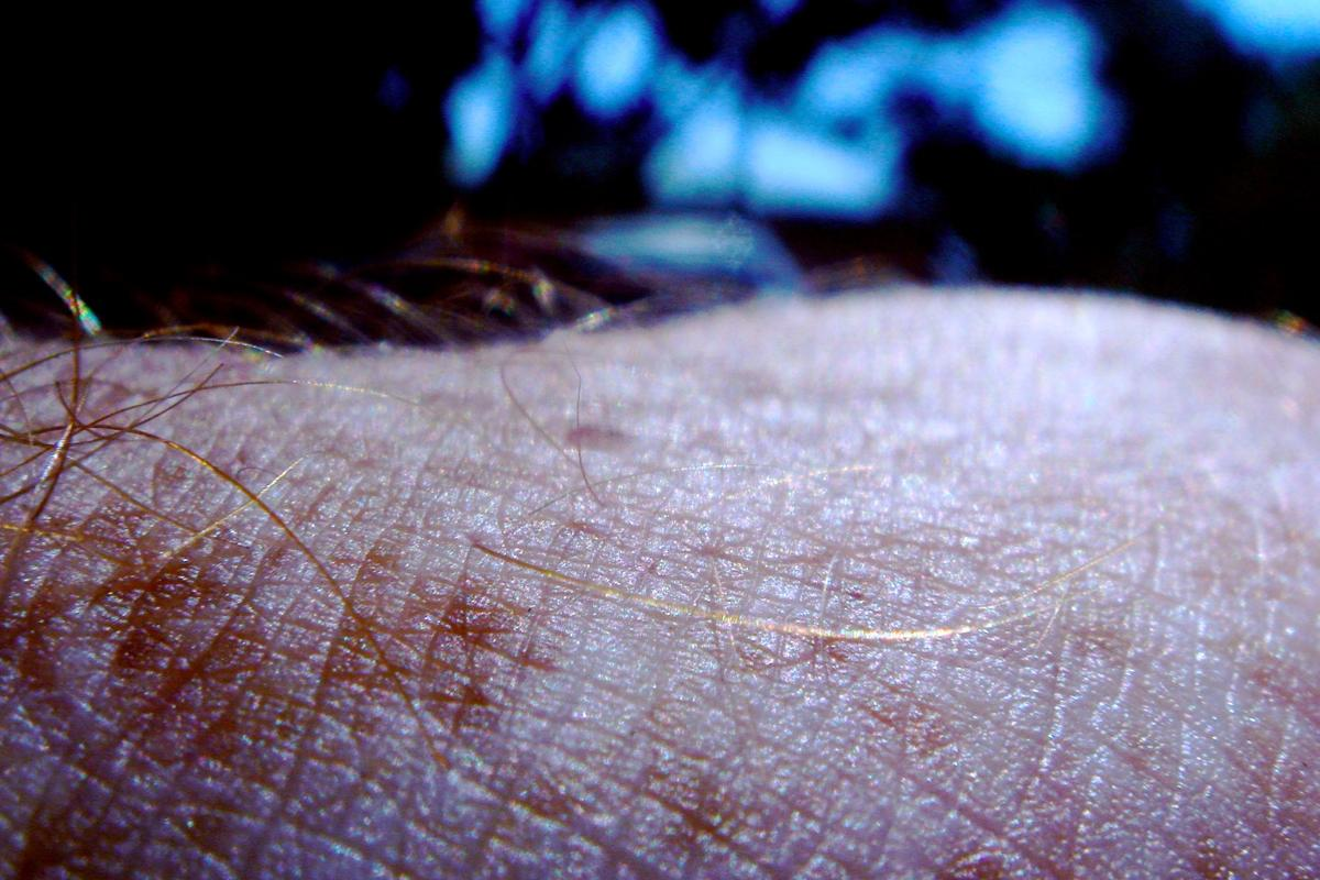 The device images not just the skin itself, but also structures below its surface
