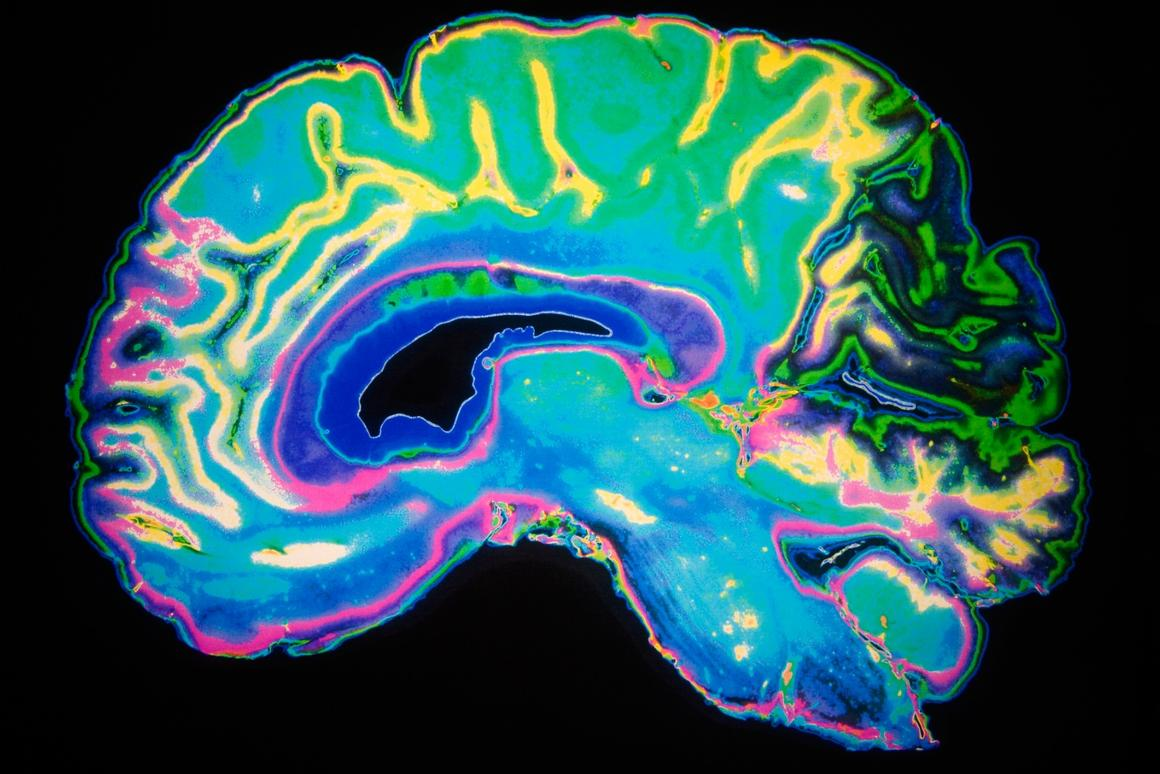 Newresearch revealed how toxic proteins can travel up from the gut into the brain to causes damage similar to that seen in Parkinson's disease