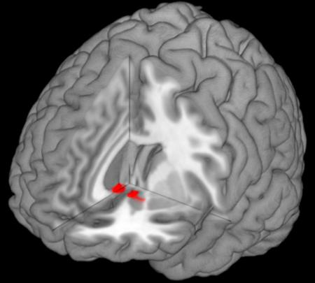 Close neurological ties between reward-processing and pain-processing regions in the brain may allow love to provide effective pain relief