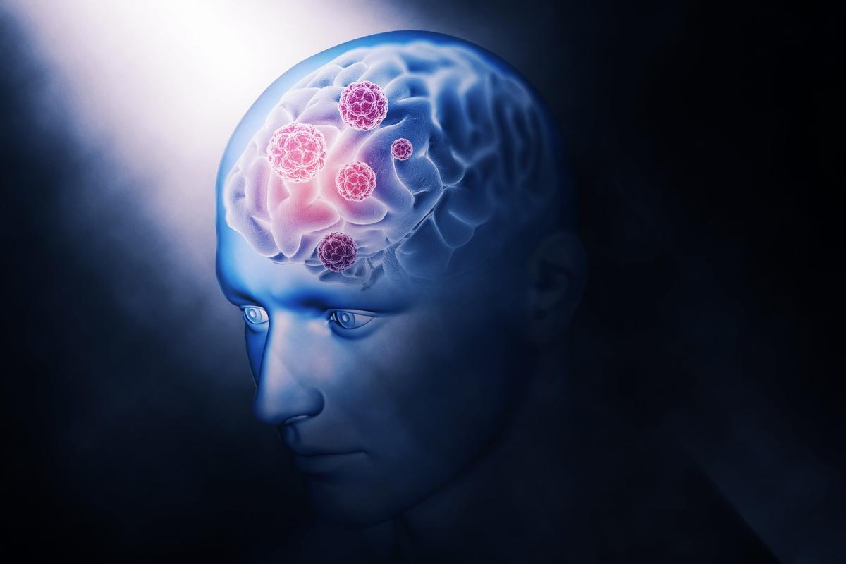 In early testsnewly developed synthetic peptides areproving to be a promising new potential weapon in the battle against Alzheimer's disease