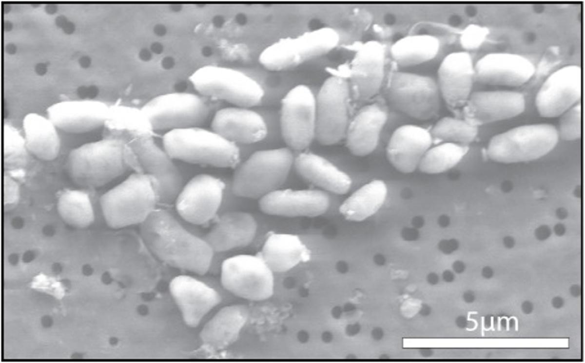 The GFAJ-1 bacteria, grown on arsenic