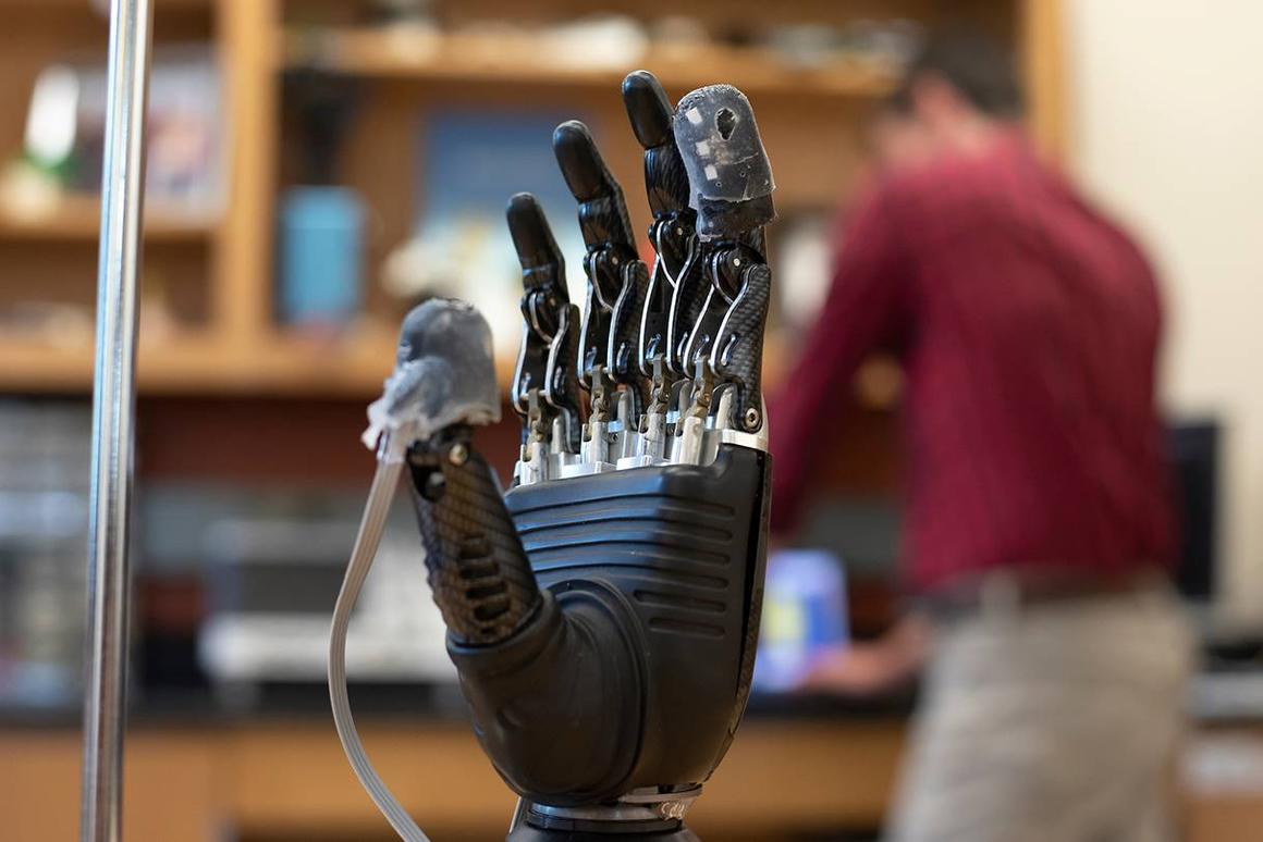 "The ""e-dermis"" applied to the thumb and forefinger of a prosthetic hand"