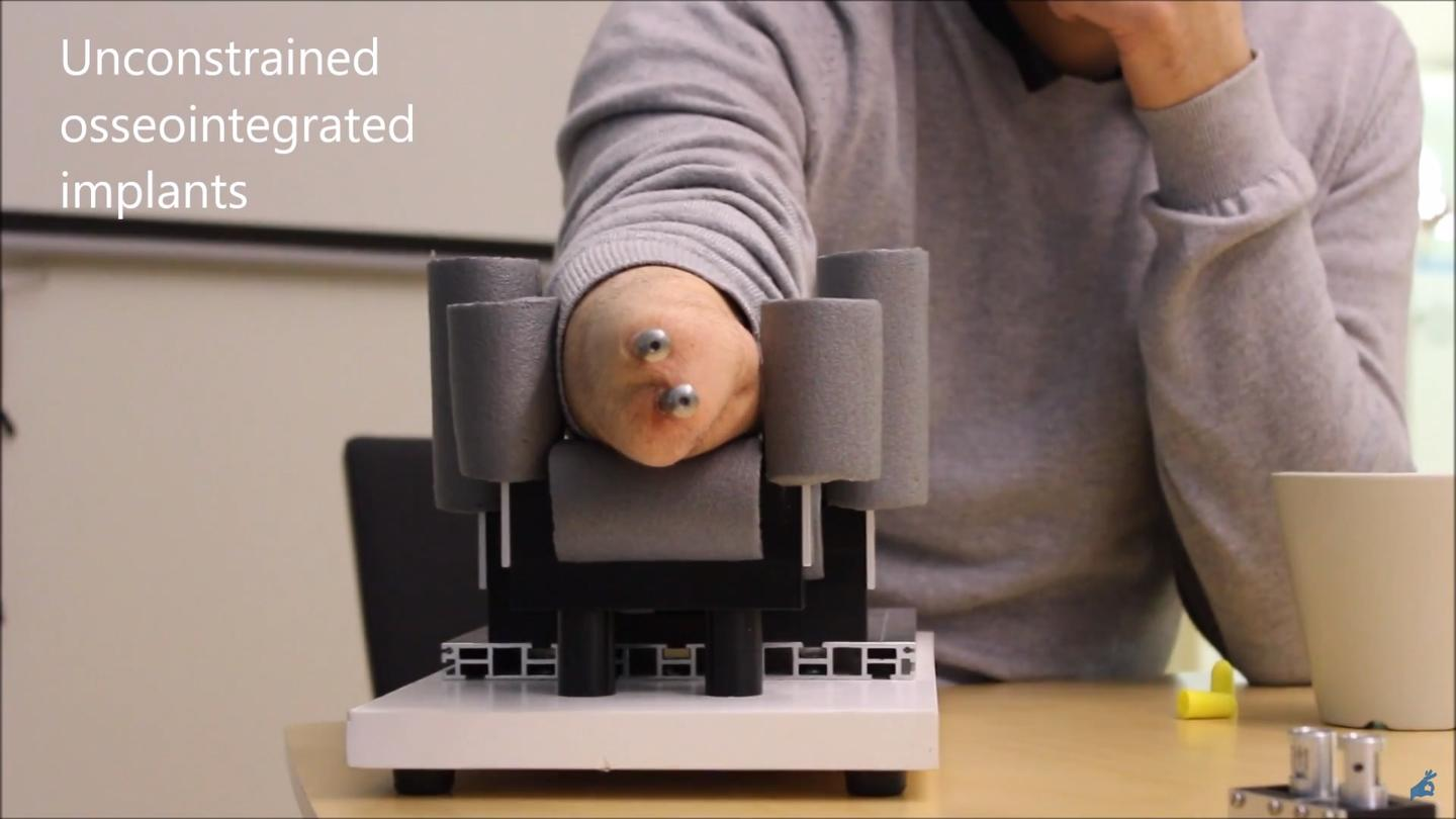 Image of the implants attached to the forearm bones that interface with the wrist prosthesis