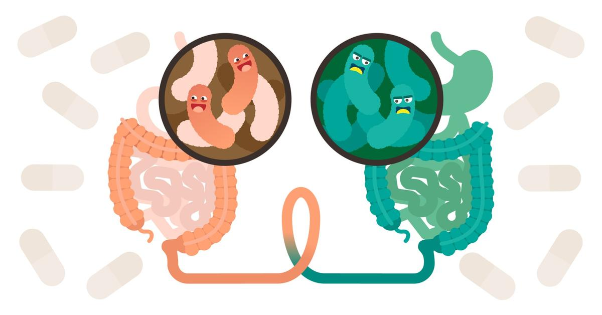 Despite no weight loss noted during the treatment period, a study into FMT to treat obesitydid uncover certain microbiome changes occurring in the subjects receiving the fecal transplants