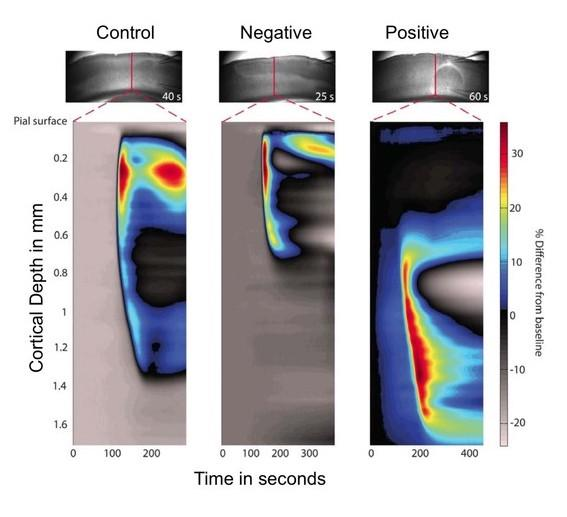 Optical images of the spreading depolarization in the brain