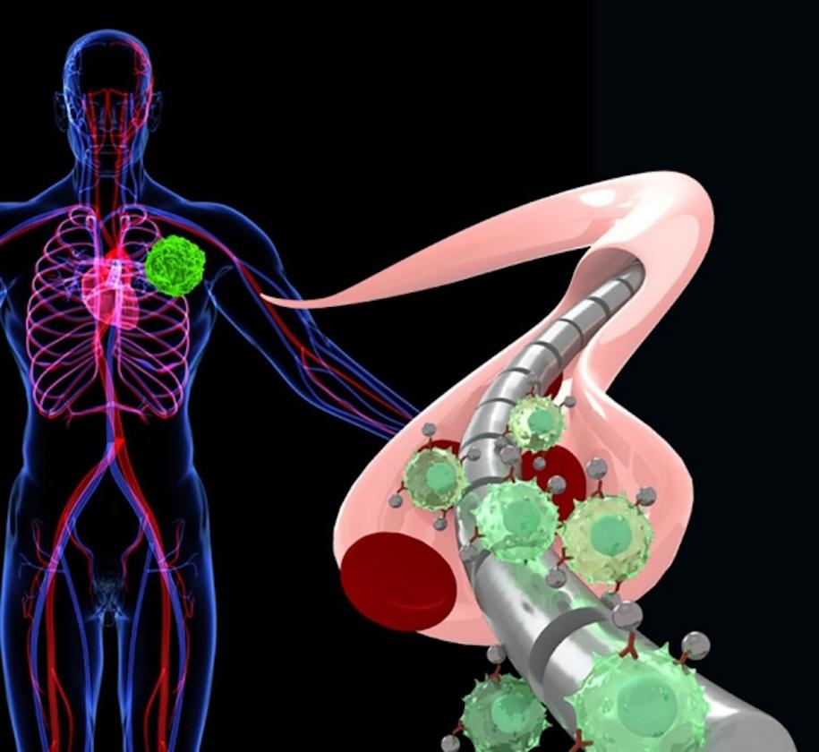 A magnetic wire attracts free-floating tumor cells that have been magnetized by specially engineered nanoparticles