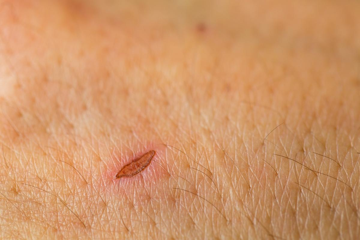A material currently in development works in the same fashion as a scab, to accelerate the healing of wounds (Photo: Shutterstock)