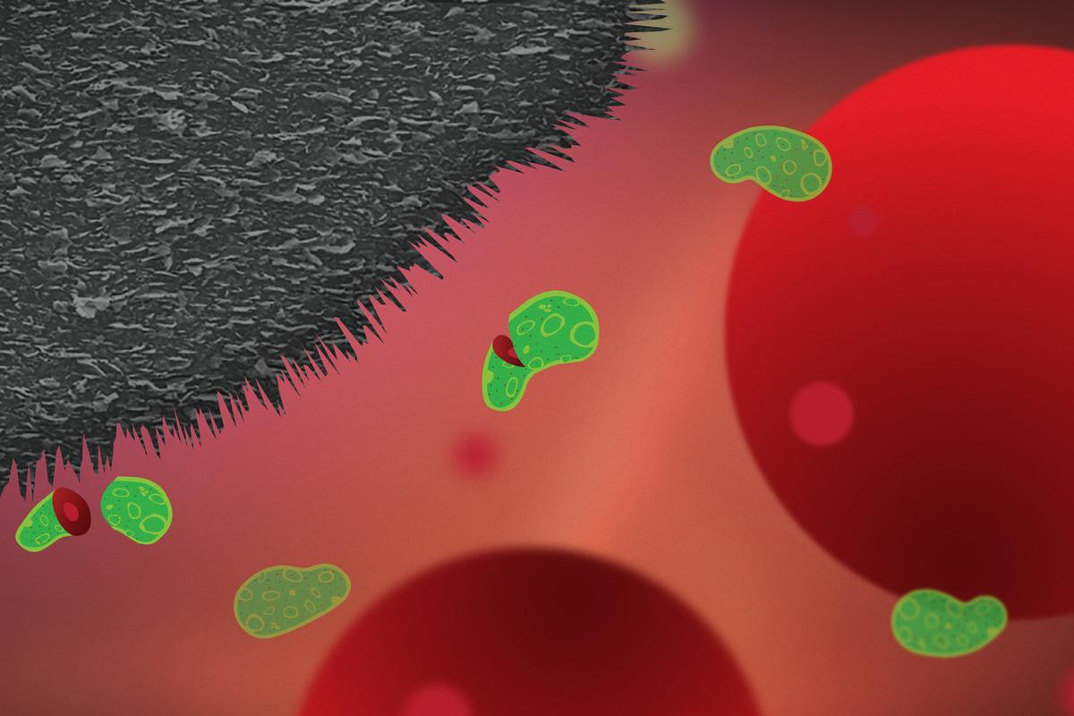 The graphite nanoplatelet coating (black) cuts up bacteria (green) but leaves larger human cells (red) intact