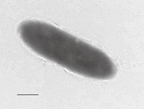The new bacteria were found to degrade hydrocarbons