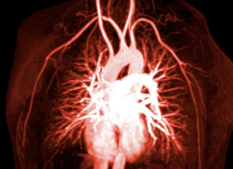 Angiogram of blood vessels in and around the heart