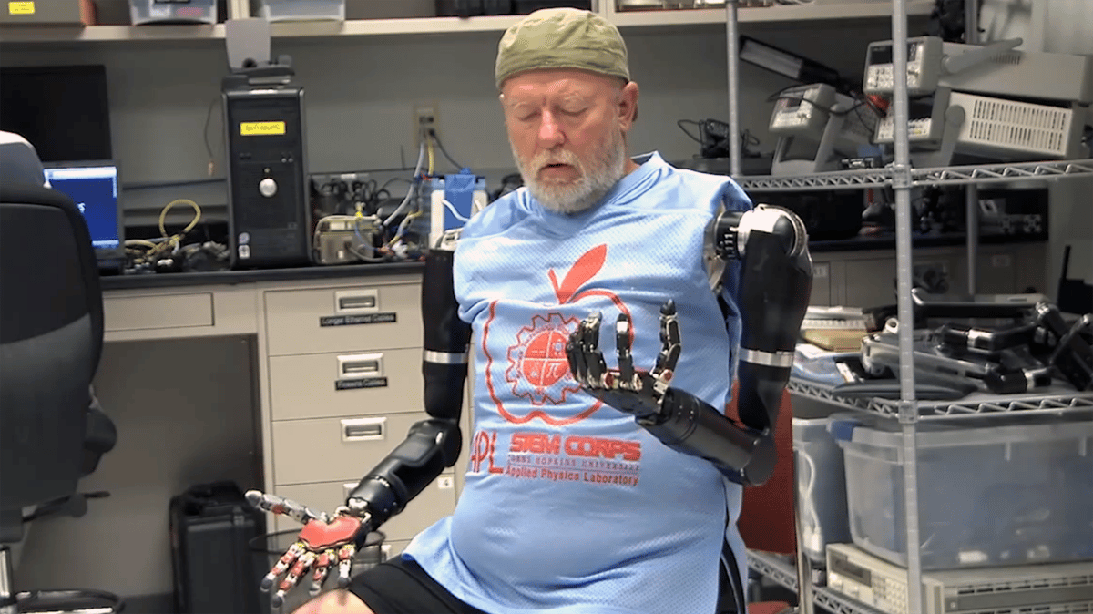 The new technology allowed test subject Leslie Baugh to simultaneously control a combination of motions across both arms – a first for the field