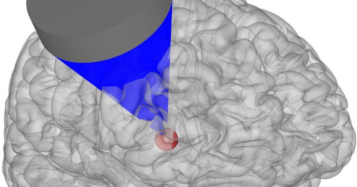 Ultrasound brain stimulation changes monkey behavior directly