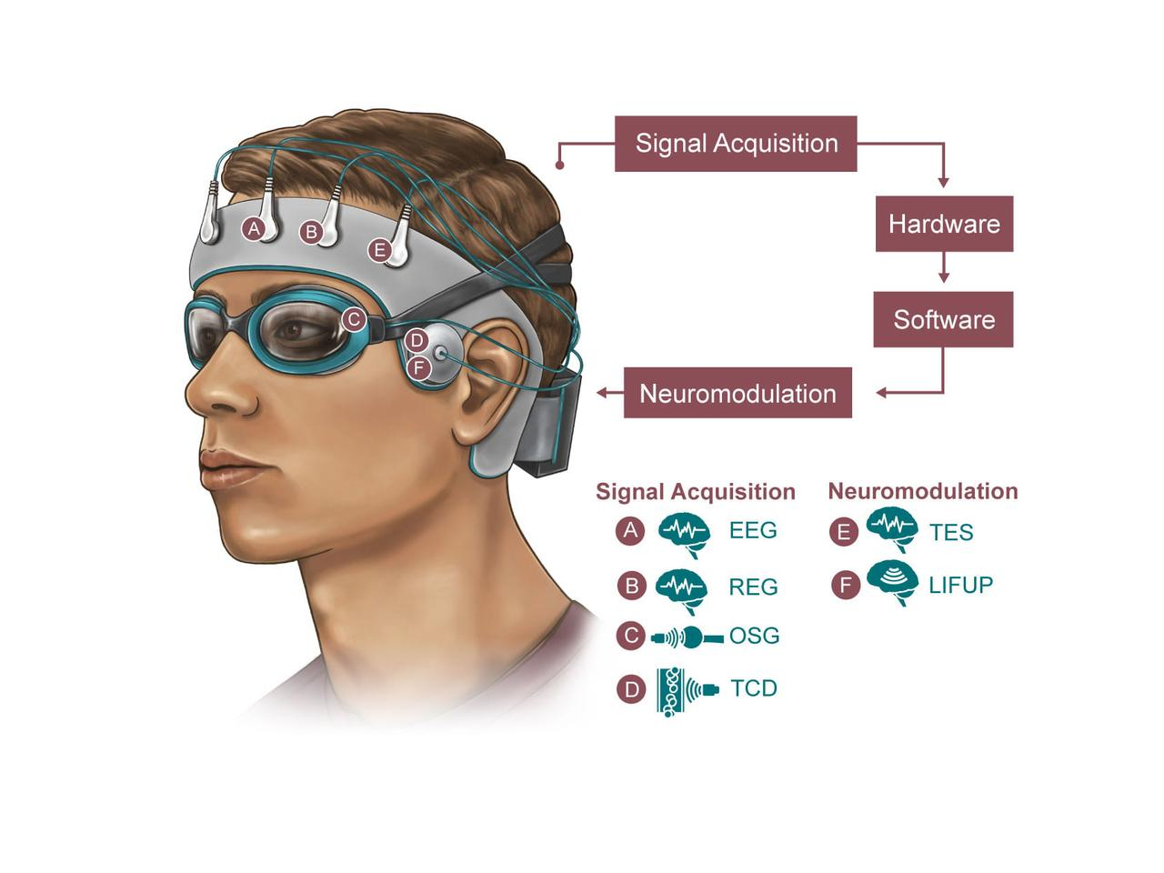 A diagram illustrating what the new sleep-tracking skullcap could look like and how it would work