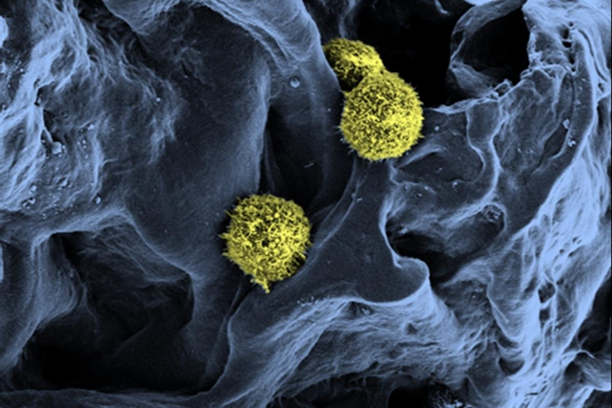 Scanning electron microscopy of stem cells (yellow / green) in a scaffold structure (blue) serving as a basis for the artificial bone marrow (Photo: C. Lee-Thedieck/KIT)