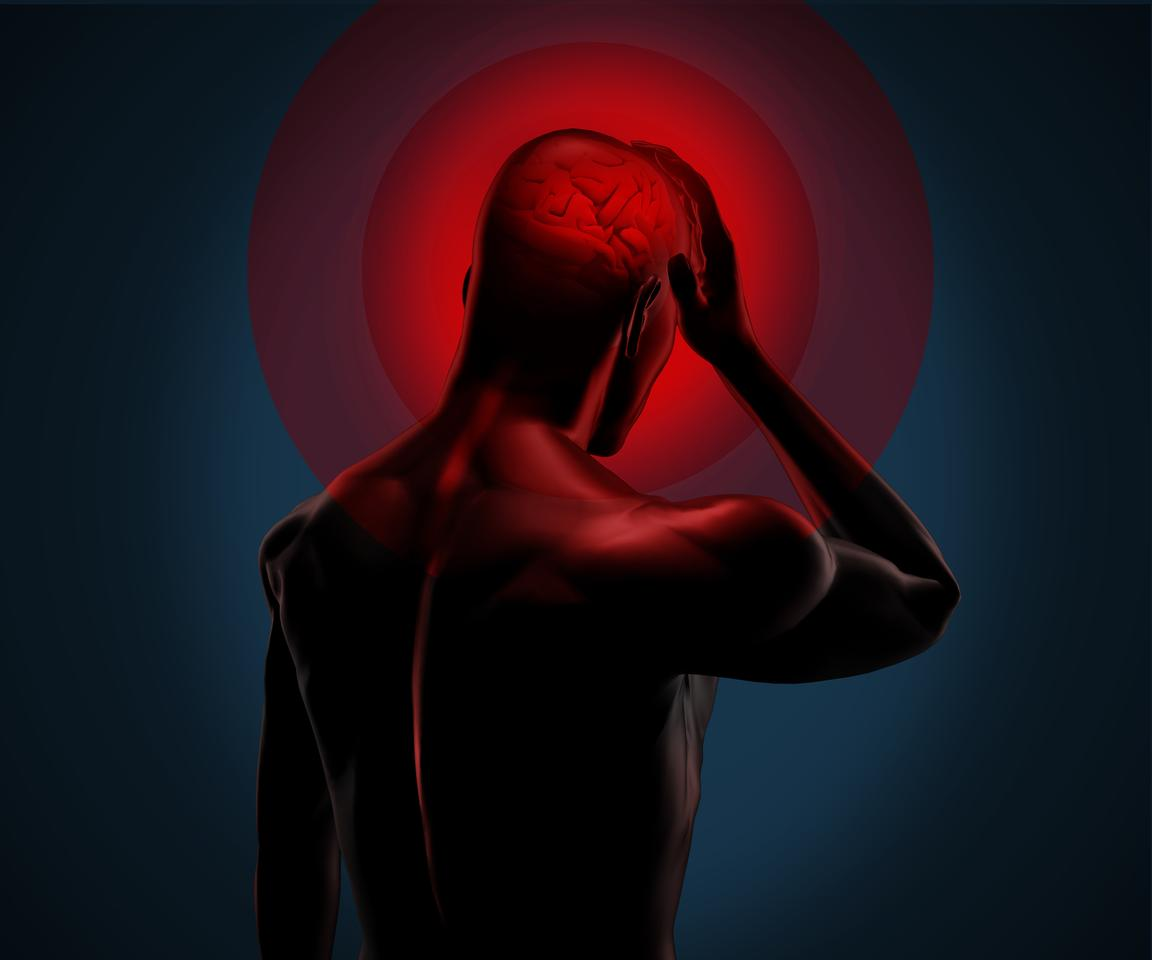 A small implant in the back of the head delivers electrical stimulation to the occipital nerve, reducing the frequency and severity of attacks in patients with chronic cluster headache