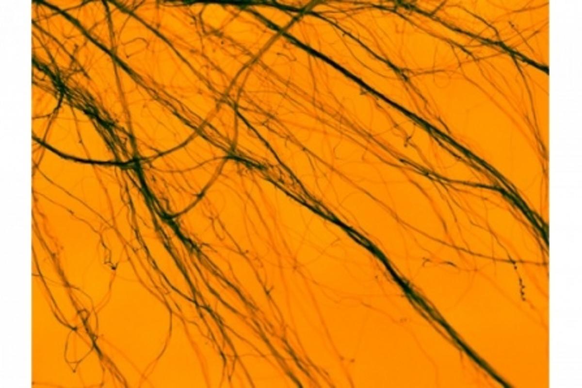 SEM micrograph of Multi Walled Carbon Nanotube bundles at about 7220x magnification (Photo: _mattxb via Flickr)