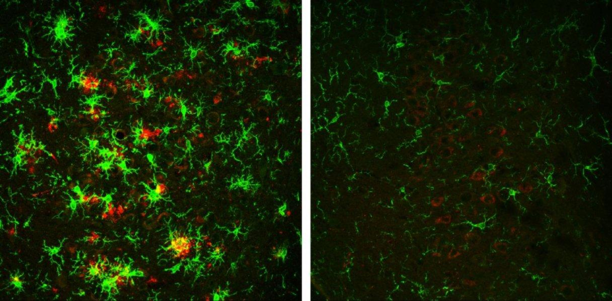 On the left is a brain of a 10-month old mouse with amyloid plaques marked in red, while on the right is a similar aged mouse with BACE1 inhibition illustrating the reduced amyloid build-up resulting from the new research