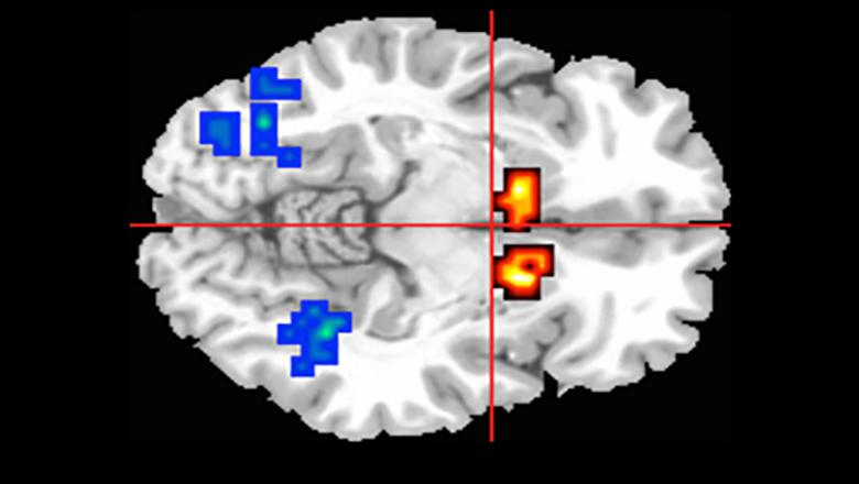 Through MRI scans, cannabidiol was found to reduce abnormal brain activity in people showing psychosis symptoms