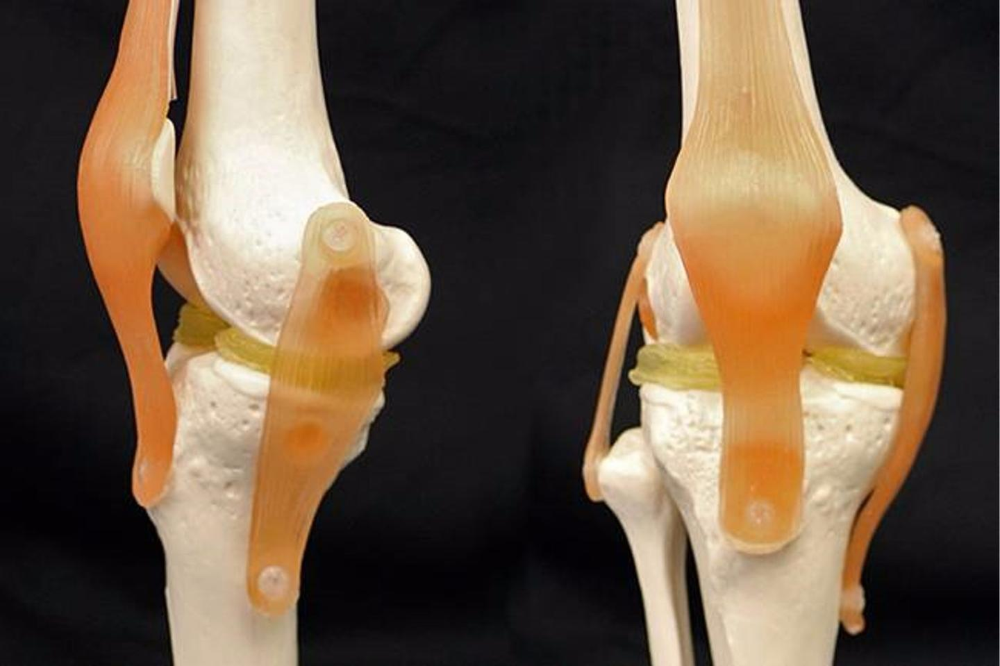 To demonstrate how their 3-D-printable, cartilage-mimicking material might work, the researchers used a US$300 3D printer to create custom menisci for a model of a knee