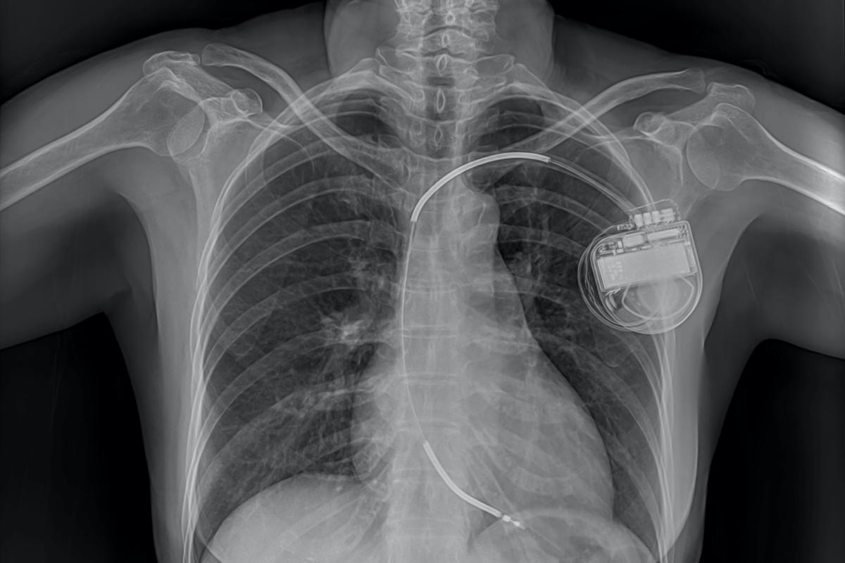 The technology might find use in the non-invasive recharging of pacemakers' batteries