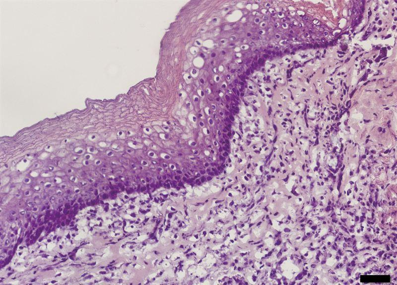 A microscope image of some of the regenerated esophageal tissue