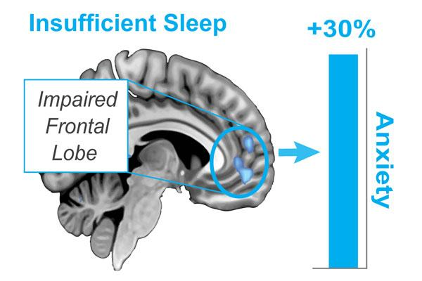 One night of sleep deprivation was found to boost anxiety levels up to 30 percent and inhibit activity in the prefrontal cortex