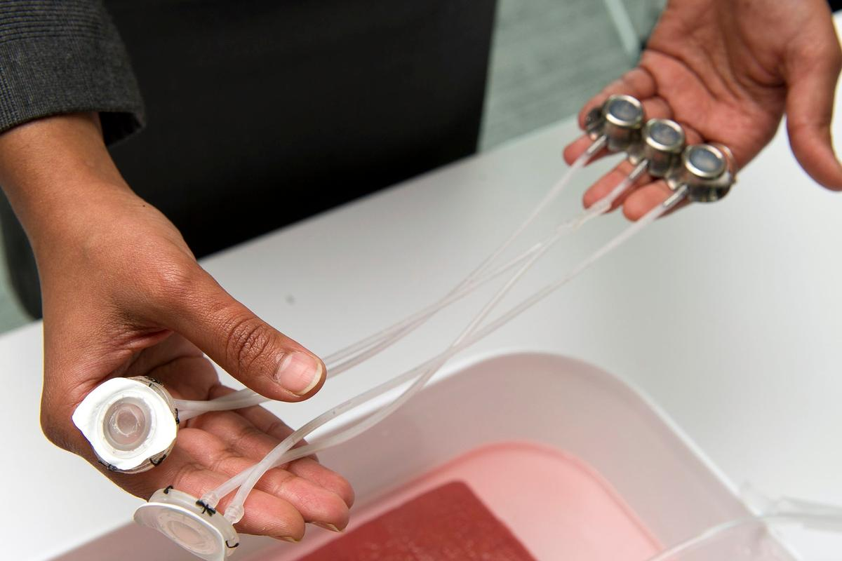 Students from Johns Hopkins University have created an implantable device, that could make dialysis treatments safer and easier (Photo: Johns Hopkins University)