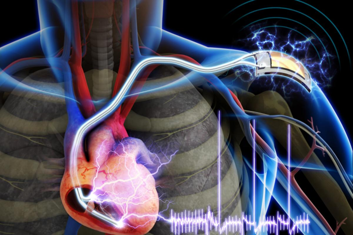 A group of researchers has developed a pacemaker powered by an implantable flexible piezoelectric nanogenerator