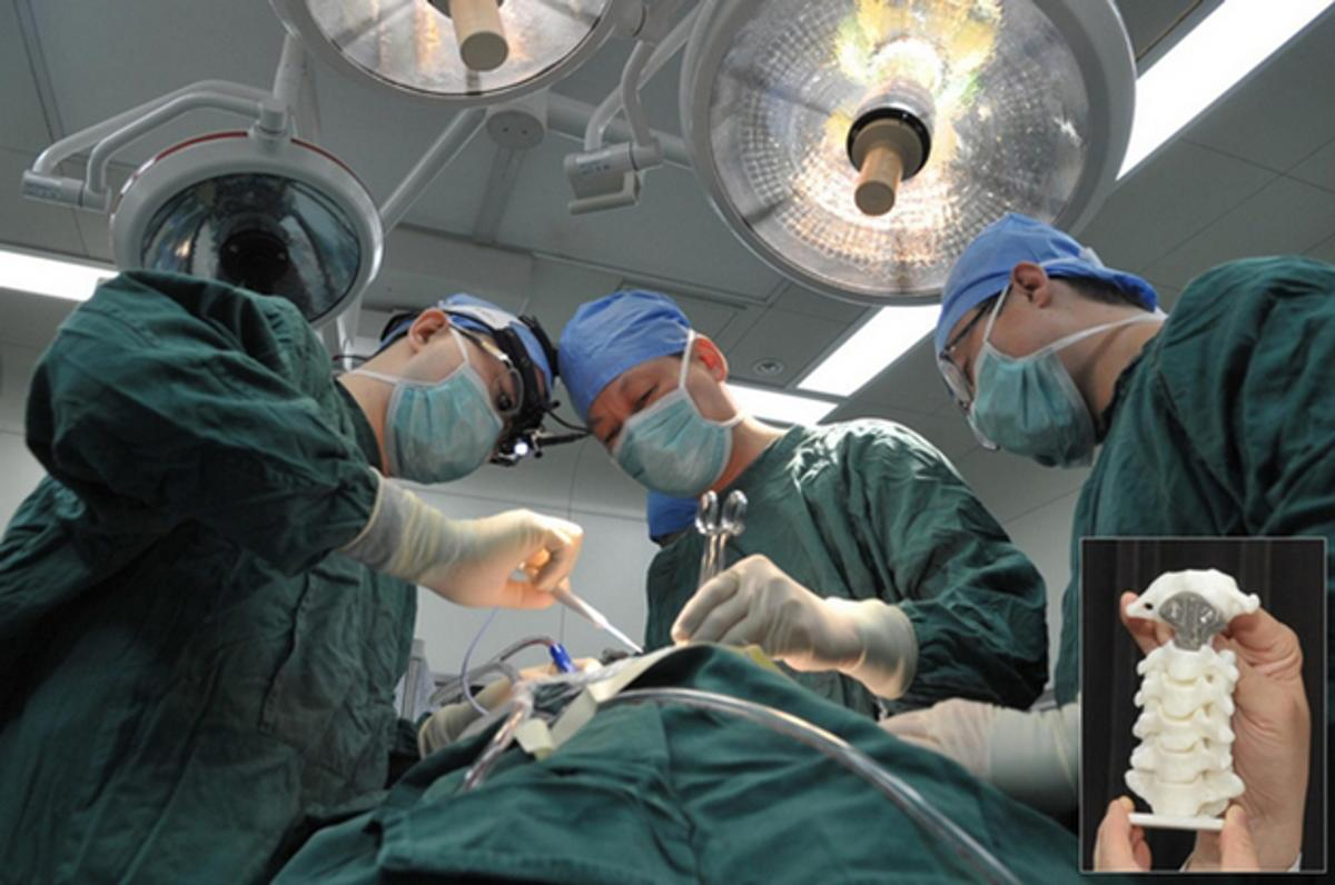 Surgeons used a 3D-printed implant to replace a cancerous vertebra in a 12-year-old boy