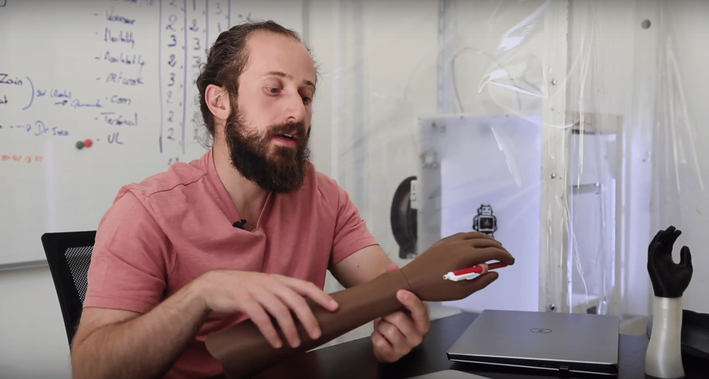 MSF'sSafa Herfat demonstrates a US$20 3D-printed hand