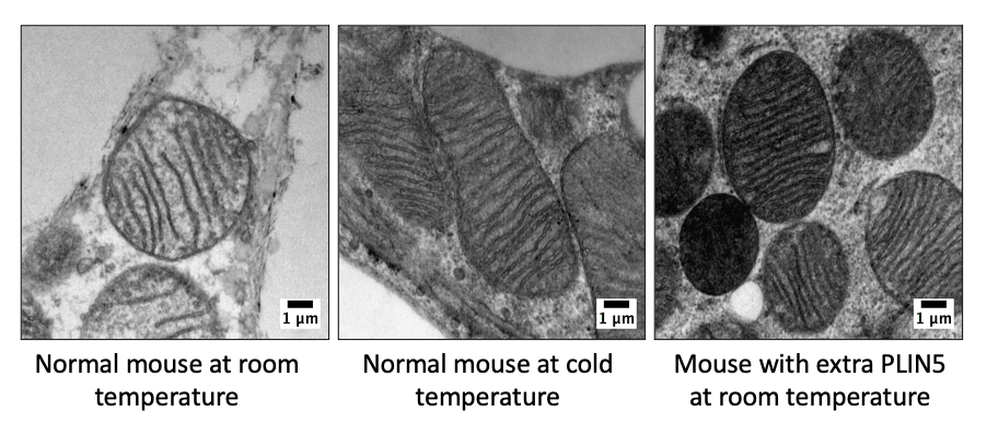 By boosting a certain protein in brown fat cells, scientists found that at room temperature they behaved like brown fat cells burning calories in the cold