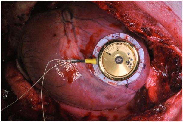 The energy-harvesting device, attached to a pig's heart