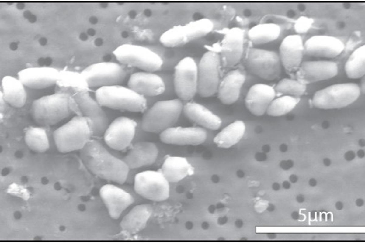 The GFAJ-1 bacteria, grown on arsenic